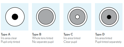 Ultravision Clpl Specialist In Contact Lenses Tints